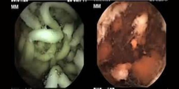 see what happens to instant noodles inside your stomach