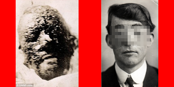 Walter Yeo The First Plastic Surgery Patient In The World