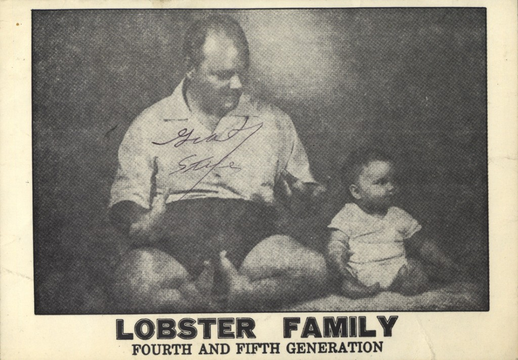 Lobster Boy: From Circus Freak to Cold-Blooded Killer | First to Know